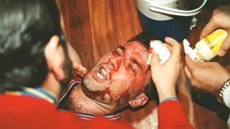 La escena más escalofriante sobre una cancha de basket fue televisada en directo, Slobodan Jankovic se queda paralitico despues de pegarle un cabesaso a el poste de la canasta